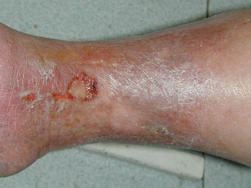Trattamento laser a thrombophlebitis