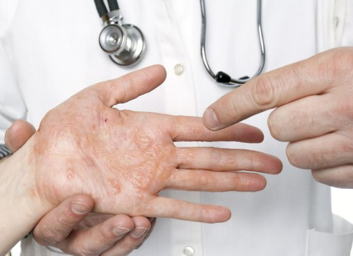 Dermatologist examining hand with severe eczema